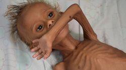Τα παιδιά λιμοκτονούν στην Υεμένη. Το συγκλονιστικό ντοκιμαντέρ του BBC για τα άφαντα θύματα του
