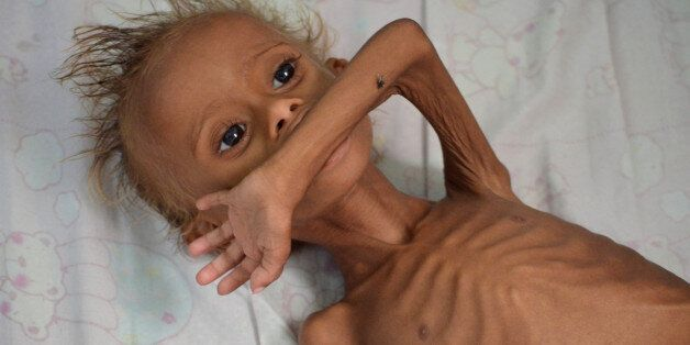 A malnourished boy lies on a bed at a hospital in the Red Sea port city of Houdieda, Yemen September...