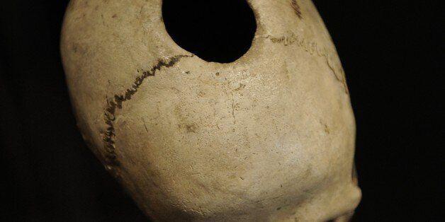 Trepanned skull. From a grave in Naes, Falster. Neolithic. National Museum of Denmark. Copenhagen. Denmark....