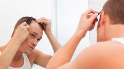 Φαλακρός και κάτω των 30 ετών: Ένας πραγματικός