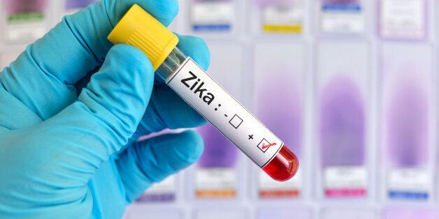 Blood sample positive with Zika