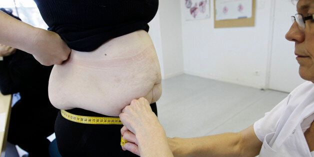 A nurse measures an obese patient at the office of surgeon Dr. Alexandre Lesage's to prepare for surgery...