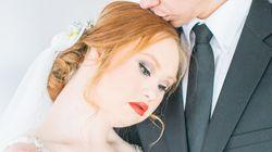 Το μοναδικό στον κόσμο μοντέλο με σύνδρομο Down γίνεται πανέμορφη νύφη και σπάει όλα τα