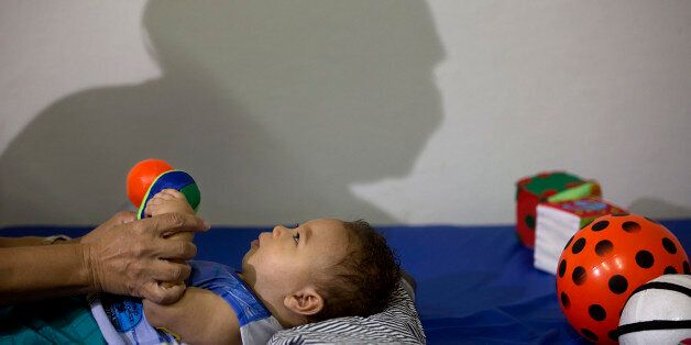 Caio Julio Vasconcelos who was born with microcephaly undergoes physical therapy at the Institute for...