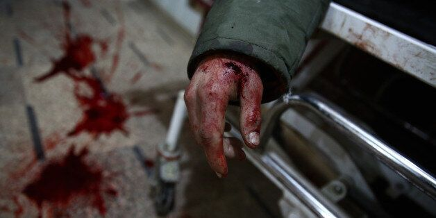 EDITORS NOTE: Graphic content / The body of a Syrian man lies on a stretcher at a make-shift hospital...