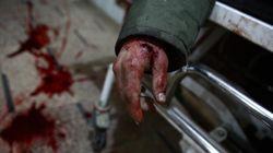 «Βρώμικο» χτύπημα. Βομβαρδισμός νοσοκομείου στη Συρία με τρεις νεκρούς και έξι