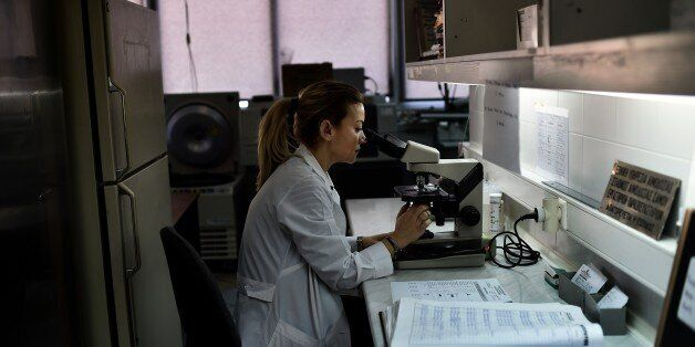 TO GO WITH AFP STORY BY SOPHIE MAKRIS A doctor looks through a microscope at a hospital on the eastern...
