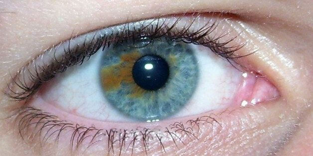 A blue eye with a brown