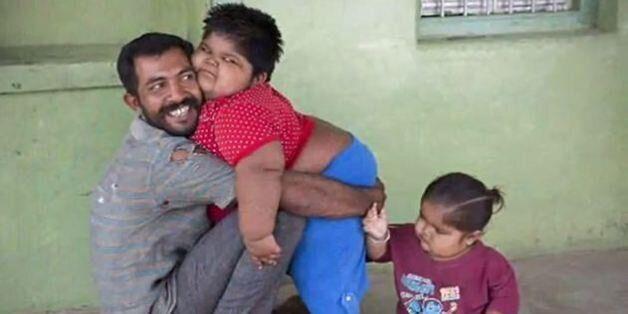 Ινδία: Απελπισμένος πατέρας διατίθεται να πουλήσει το νεφρό του για να σώσει τα παχύσαρκα παιδιά