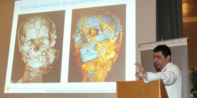 Ολική αλλαγή προσώπου και λαιμού σε ασθενή στην Ισπανία. Η μεταμόσχευση κράτησε 27