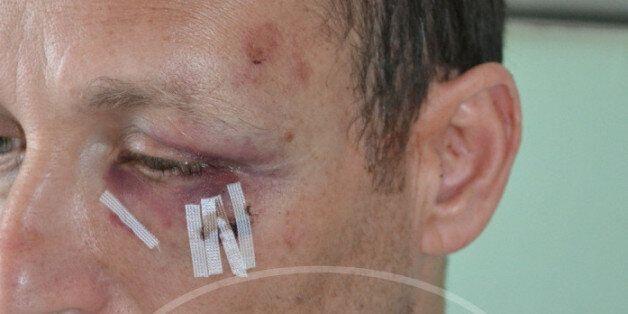 Θύμα ξυλοδαρμού γιατρός επειδή υπερασπίστηκε