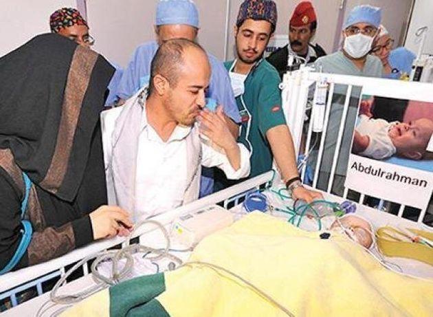 Abdullah και Abdulrahman: Η ιστορία των σιαμαίων μωρών που επέζησαν ύστερα από 9ωρη λεπτή χειρουργική