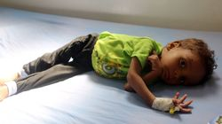 Yémen: 11 millions d'enfants ont désespérément besoin d'aide, alerte