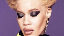 Diandra Forrest, première mannequin albinos à devenir égérie d'une grande marque de