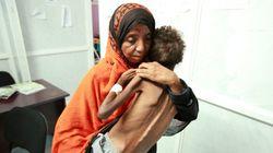 Choléra au Yémen: appel à l'aide internationale lancé par
