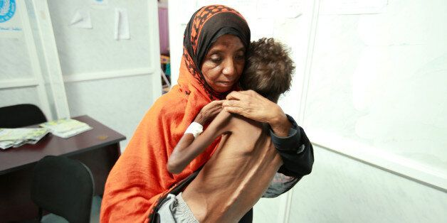 A woman carries her son Imran Faraj, 8 year-old, who is suffering from malnutrition at a hospital in...