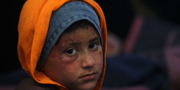 A boy, who was injured during a bomb blast on a crowded Syrian bus convoy outside Aleppo on Saturday,...