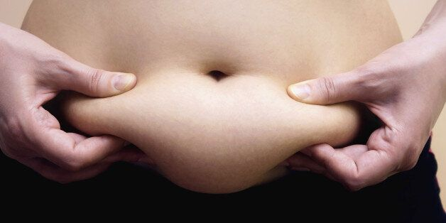 Obese women shows fat on her stomach,