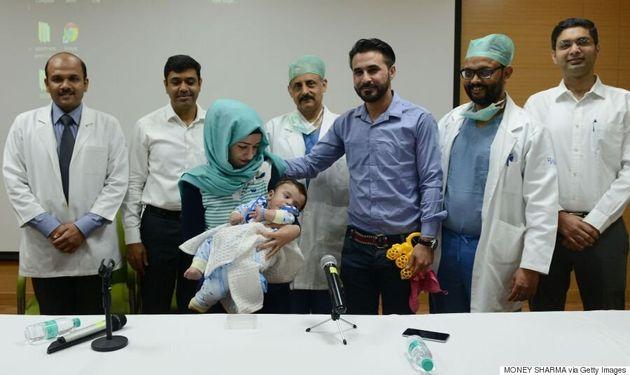 Un bébé à huit bras et jambes opéré avec succès en
