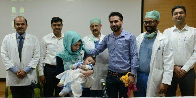 Un bébé irakien à huit bras et jambes opéré avec succès en