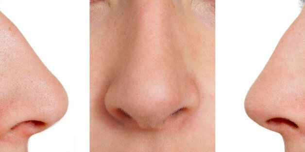 Aquiline nose (front, right,