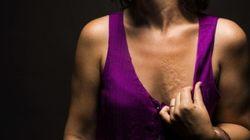 25 femmes exposent leurs cicatrices pour révéler la beauté et la force des