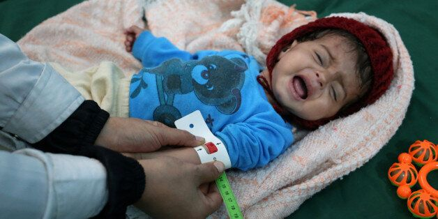 A malnourished Yemeni boy is attended to at a therapeutic feeding centre in the country's third-largest...