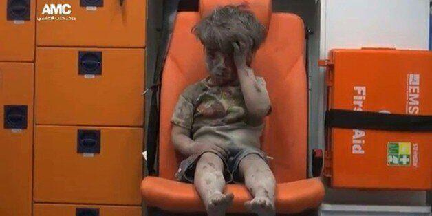 Omrane, 4 ans, symbole de la violence aveugle de la guerre en