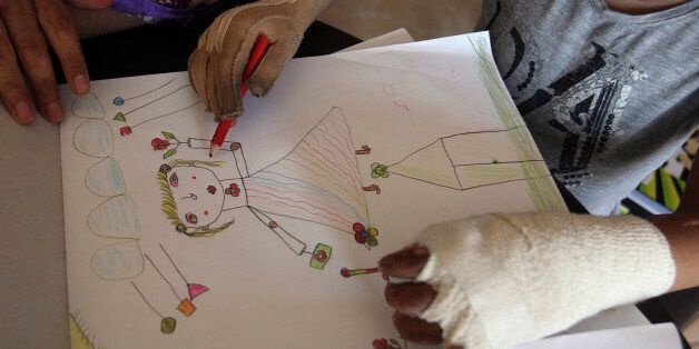 Kamar, a Syrian refugee girl who was injured during the violence in her country, draws during a psychological...