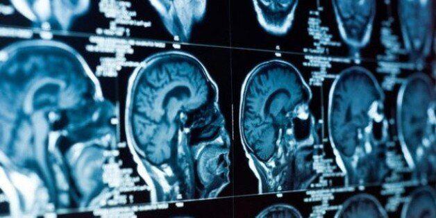 Faute de professeurs, le service de neurologie à Oran menacé de