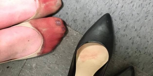 Les pieds ensanglantés de cette