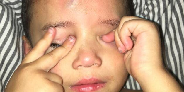 Cette maman a eu une belle idée pour dédramatiser la blessure de son fils