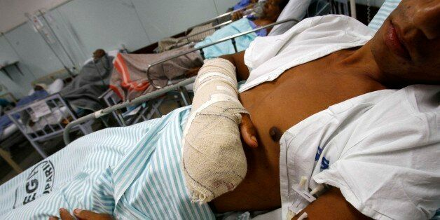 Marcelo Soares dos Santos lies in a hopital after being injured during a shoot-out between police and...