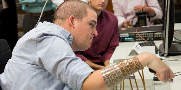 Ian Burkhart, tétraplégique, est parvenu à utiliser sa main grâce à un