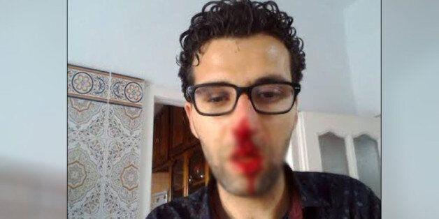 Tunisie: Des journalistes de Nessma TV agressés à Kerkennah, RSF et le Syndicat des journalistes