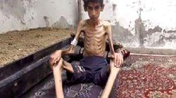 Famine: L'aide humanitaire arrive ENFIN à