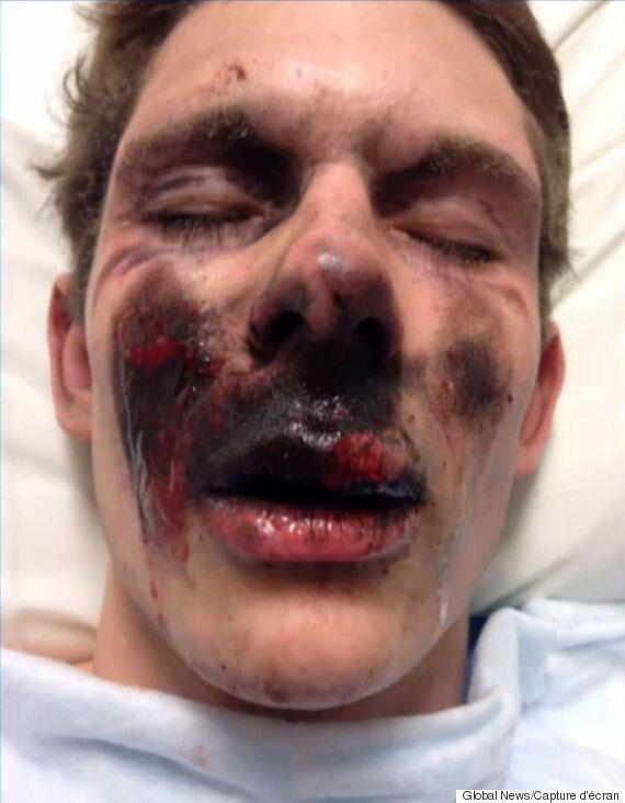 Sa cigarette électronique lui explose au visage et lui inflige de sérieuses