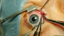 Plus de 500 greffes de la cornée réalisées en