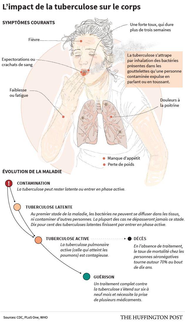 La tuberculose pourrait faire 75 millions de morts d'ici à