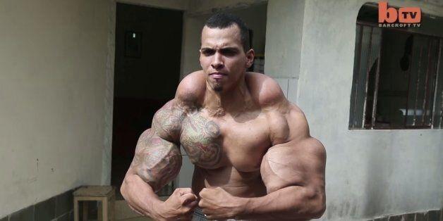 Bodybuilding: ce Brésilien voulait ressembler à Hulk, il a failli se faire amputer des