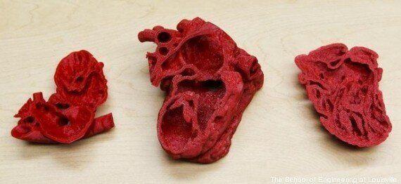 Une opération du cœur sur un bébé réussie grâce à l'impression