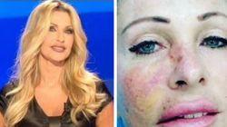 Paola Ferrari mostra la foto del carcinoma al viso: