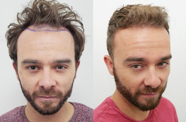 Jack P Shepherd underwent a hair
