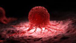 「がんの疑い」診断を3年放置。滋賀の病院で男性患者が死亡
