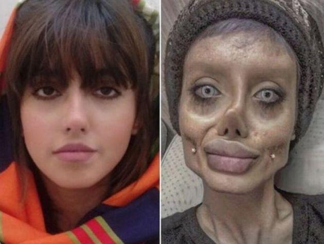 사하르 타바르의 성형 전 모습과 인스타그램에 올라온