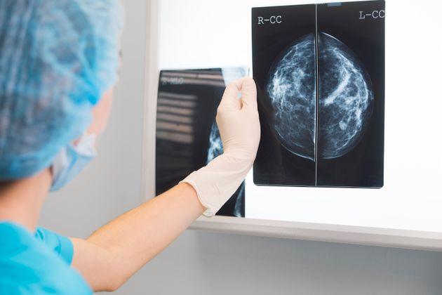 Octobre rose: premiers symptômes, traitements, quand s'inquiéter... Tout sur le cancer du sein