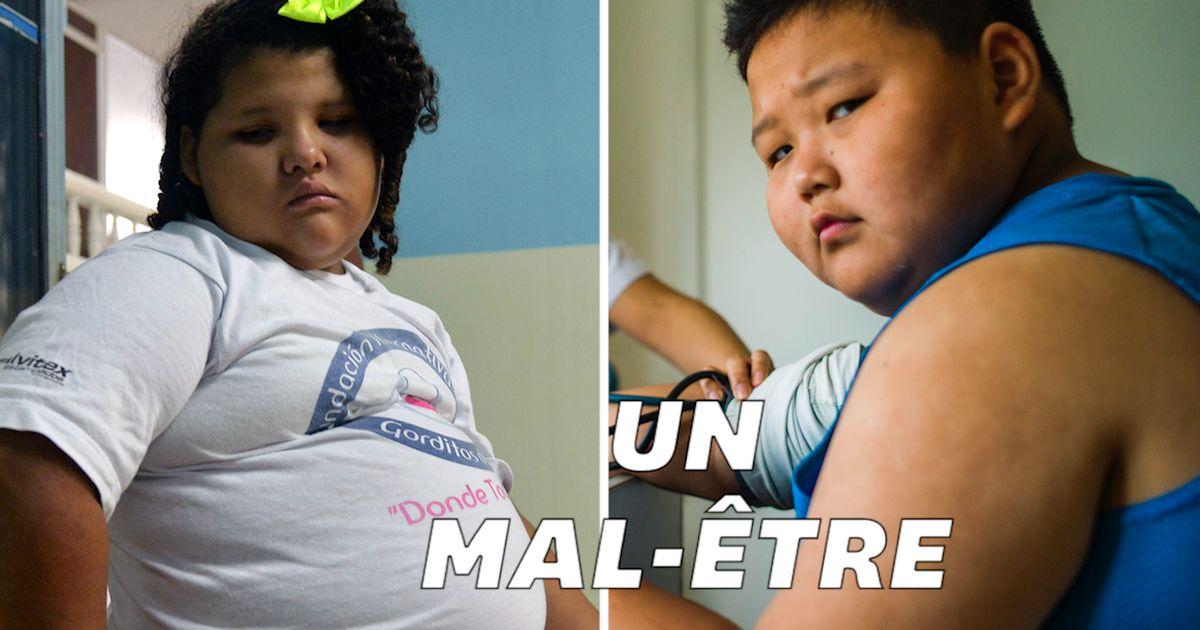 L'obésité chez l'adolescent, des conséquences sur le corps mais pas seulement