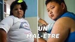 L'obésité chez l'adolescent, des conséquences sur le corps mais pas