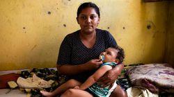 4 críticas do Ministério Público à pensão vitalícia para crianças com microcefalia causada pelo