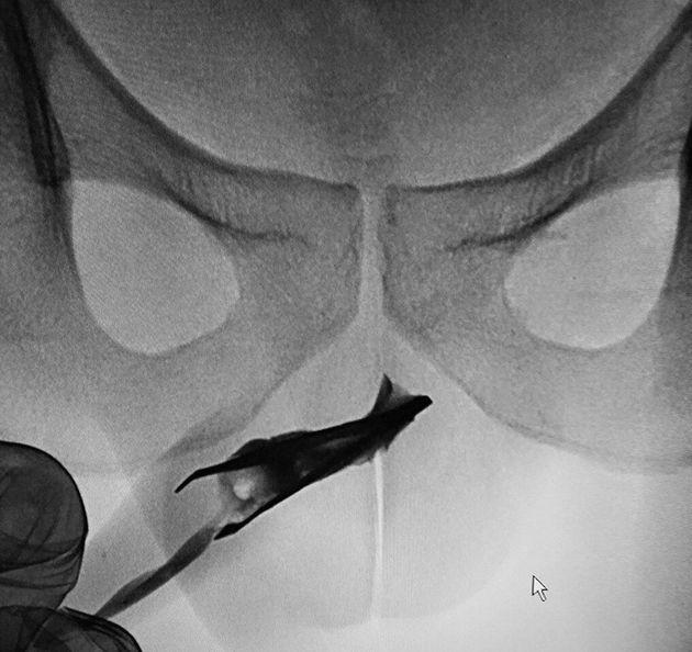 Man Had 3-Inch Tweezers Stuck In Urethra For 4 Long